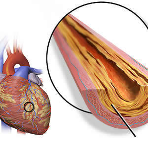 Is PCI Safe for Patients Undergoing TAVR?