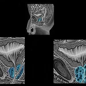 MRI Improves Prostate Cancer Detection, Avoids Unneeded Biopsy