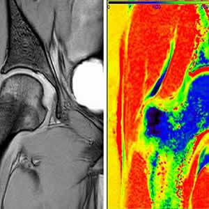 Raw image data collected from dGEMRIC MRI protocol at an inversion time of 1600 milliseconds (left). The T1 map computed from seven different inversion times using the automated, real-time, quantitative magnetic resonance imaging pipeline (right).