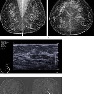 Images in a 55-year-old screening participant. (a, b) Normal digital full-field mediolateral oblique (a) and craniocaudal (b) mammograms (BI-RADS category 1) show a heterogeneously dense breast (ACR category C). (c) Screening ultrasound image shows normal