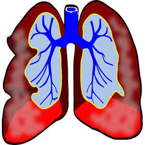 The Imaging of Small Pulmonary Nodules