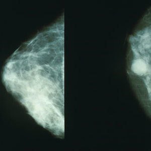 Screen-detected Breast Cancers Don't Regress If Left Untreated