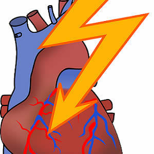 17-fold Increase in Risk of Heart Attack Following Respiratory Infections