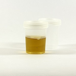 Urine Output Monitoring and Early AKI Detection