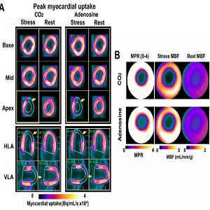 Panel A shows representative short and long-axis PET images of peak myocardial uptake of 13N-ammonia during hypercapnia of PaCO2 ~ 60 mmHg (CO2), standard clinical dose of adenosine (Adenosine) and at rest with PaCO2 ~ 35 mmHg (Rest) in a canine with a LA
