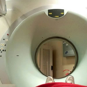 Experts: Diagnostic Radiation Exposure 'Safe for Children'