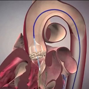 TAVR Improving with Advanced Technologies