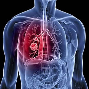 Lung cancer: differentiating metastatic from nonmetastatic lymph nodes