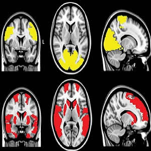 MR images show reduced regional functional connectivity in, A, Parkinson's disease (PD) patients and, B, exclusively in PD + visual hallucinations (VH) patients. Regional functional connectivity analysis revealed lower functional connectivity in PD + VH a