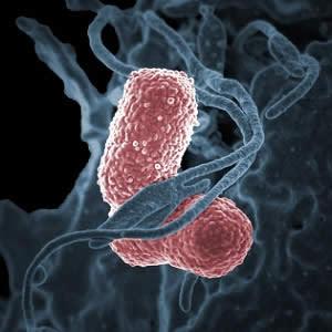 Transmission of antibiotic-resistant Enterobacteriaceae in ICUs