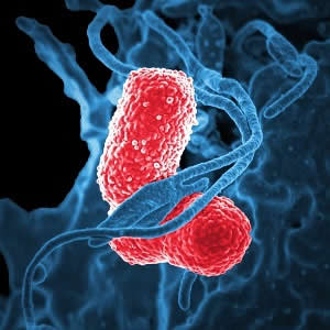 Sepsis-3 can help predict community-acquired pneumonia mortality