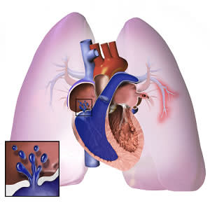 Echo indices for RVEF monitoring in pulmonary hypertension