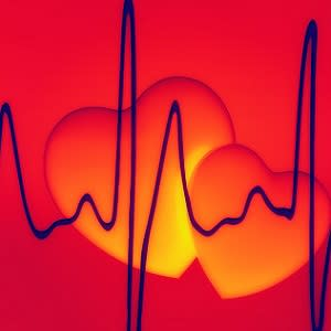 Catheter ablation better than drugs for treating AF