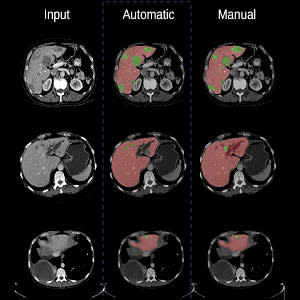 Segmentation of lesions in an organ using machine learning techniques, from a CT-scan image (left), performed by a convolutional neural network architecture (center) and manually (right).