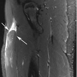 Fat-suppressed T2-weighted MR imaging demonstrates distal retraction of proximal rectus femoris muscle (arrows).
