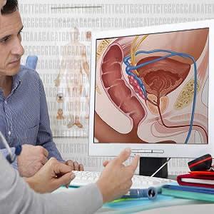 Contrast-enhanced ultrasound for prostate cancer detection