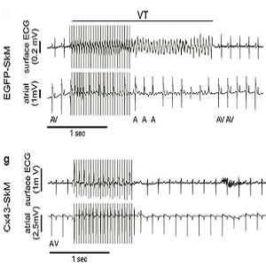 Burst stimulation induces self-terminating VT in a representative EGFP-SkM transplanted mouse in vivo.