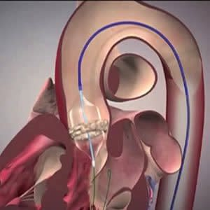Aortic calcification can help predict post-TAVR mortality
