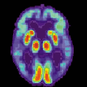 Amyloid PET improves evaluation of patients with cognitive impairment
