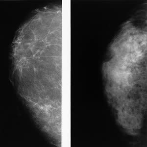 New study confirms higher cancer rate in women with dense breasts