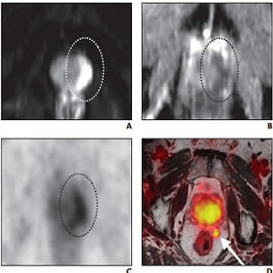 RSNA 2019: PSMA-based PET Radiotracers Transforming Care in Prostate Cancer
