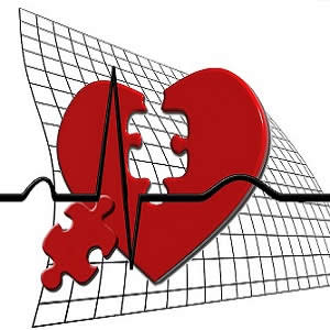 New guideline recommends catheter-based closure for 'hole in the heart' patients