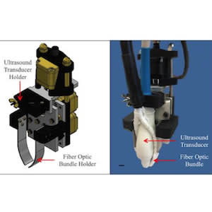 Purdue University researchers are developing a novel biomedical imaging system that combines optical and ultrasound technology to improve diagnosis of life-threatening diseases. The researchers have created a motorized photoacoustic holder that allows use