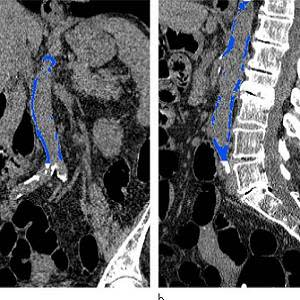 Images from CT colonography show segmented abdominal aortic calcification measured with semiautomated CT tool on (a) coronal and (b) sagittal images. Within region of interest over aorta selected by user, tool automatically segments and quantifies aortic