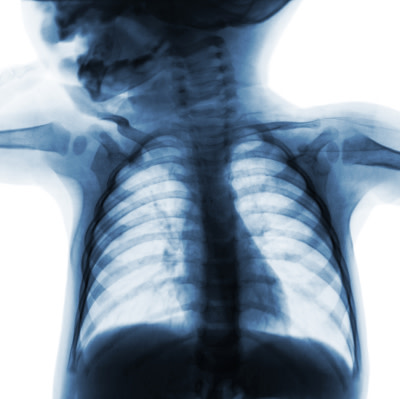 No decrease in x-rays for infants with bronchiolitis, despite guidelines