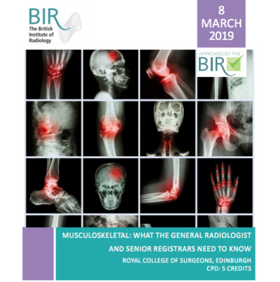 Musculoskeletal: What the general radiologist and senior registrars need to know