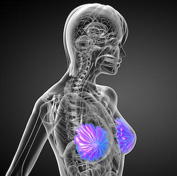 AI-radiomics mammography combo reduces breast biopsies