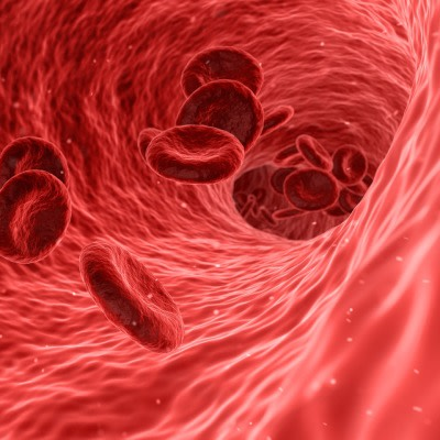 Using biomarkers to improve sepsis diagnosis and treatment