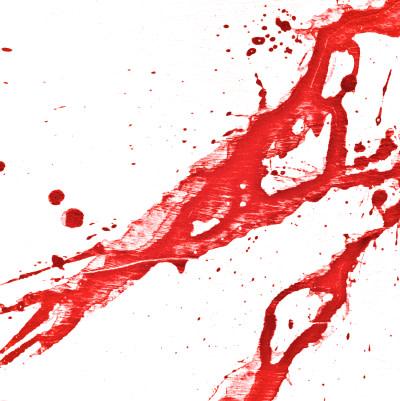 European guideline on managing post-traumatic bleeding: 5th edition
