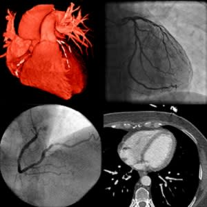 Use of imaging to guide heart attack treatment