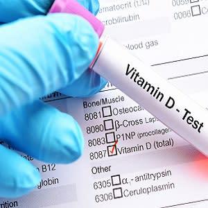 Does Vitamin D Supplementation Reduce Cardiovascular Risk?