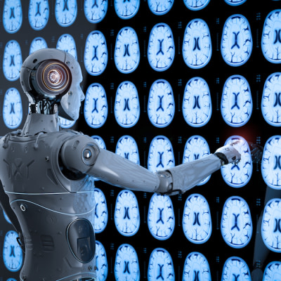 AI Tool Uses Radiology Reports for Cancer Outcomes