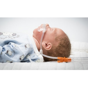 Nuflow® Nasal Cannulas for HFOT in Neonates