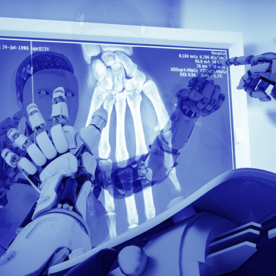 AI Accuracy Matches Clinicians'