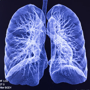 Collapsed Lung Scans: New Technology Offers Accurate Reads