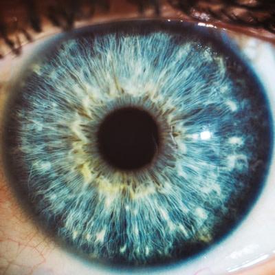 Retinal Imaging Biomarker for Early Alzheimer's Detection