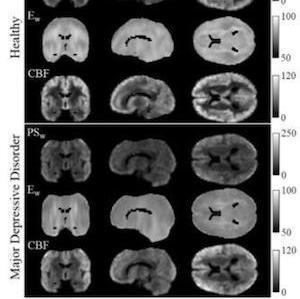 MDD MRI
