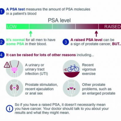 Prostate is Now Most Common Cancer