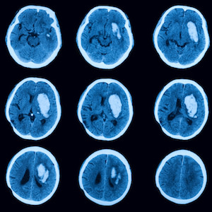 ICH Diagnosis: Could AI Step In Where Radiologists Fail?