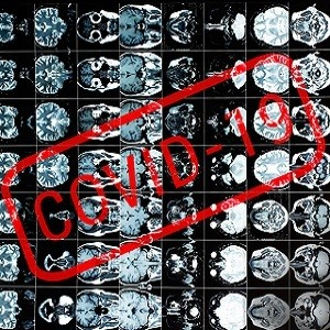 Imaging features in COVID-19 - Experience from Wuhan