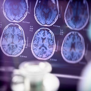#ECR2020: The Invisible in Alzheimer's
