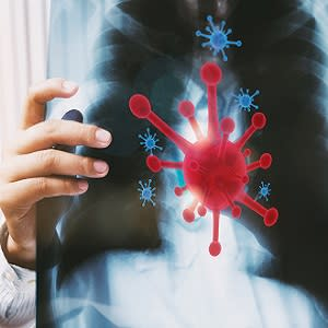 Radiology Practice in a Post-Pandemic World