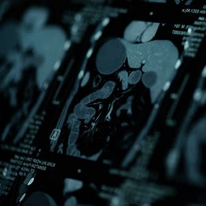Low Risk of Adverse Events With Cardiac MRI Contrast Agents