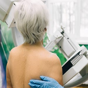 Mammography Screening Guidelines for Older Survivors of Breast Cancer