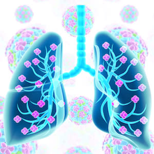 Selection Criteria for Lung Transplantation in COVID-19 Patients