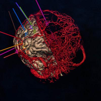 MRI to Predict Tumour Size